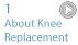 Knee Replacement - About